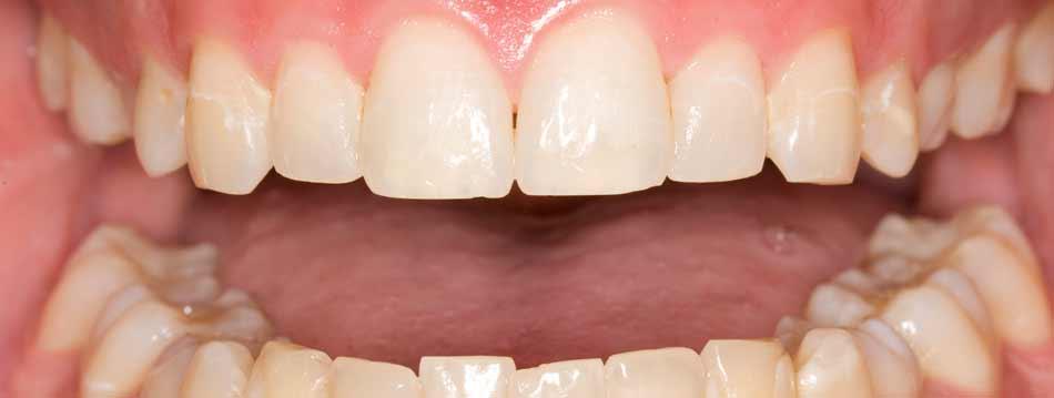 Allentown Teeth Whitening